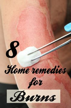 Burn is the condition of your body when it gets affected by heat. Burns can be first degree, second degree or third degree. However, first and second degree burns can be still treated at home, but do not take a. Chemical Burn Treatment, Treatment For Burns, Burn Skin Home Remedies, Home Remedies For Burns, Home Remedies For Ringworm, Second Degree Burn Treatment, Health