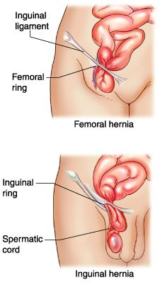Painless Hernia Cure... Treat your hernia without surgery. Visit this site for more info: www.herniacure.com.au