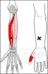 Image result for trigger point for numbness in thumb