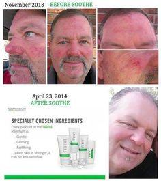 Rodan + Fields Soothe regimen! Men love their results! So great for Rosacea, redness, sensitive skin and eczema!