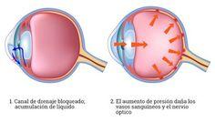 En el caso del glaucoma, es fundamental detectarlo de forma temprana. #ojos #salud