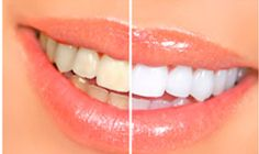 Don't worry URBN Dental Houston clinic offers best cosmetic dentistry services at an affordable price. Our dental office provides painless family dentistry services in Highland Village and Bellaire, Texas. Teeth Whitening Methods, Natural Teeth Whitening, Whitening Kit, Porcelain Veneers, Get Whiter Teeth, Dental Crowns, Beauty Tutorials