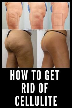 Cellulite is the pockets of fats that collect just below the surface of the skin. Cellulite is commonly formed around the thighs, hip, and buttocks. They often cause the skin to look dimpled somewhat Causes Of Cellulite, Lose Cellulite, Cellulite Exercises, Cellulite Cream, Cellulite Remedies, Cellulite Workout, Thigh Cellulite, Cellulite Scrub, How To Reduce Cellulite