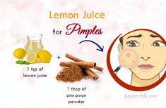 Skin Acne Remedies Top 39 Natural Home Remedies For Pimples On Face and Body – Do They Work - With these 39 natural home remedies for pimples on face Cystic Acne Remedies, Home Remedies For Pimples, Natural Acne Remedies, Skin Care Remedies, Health Remedies, Pimples On Face, Natural Oils For Skin, Natural Beauty, Wedding Bride
