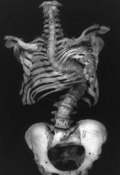 human skeleton with spine disease