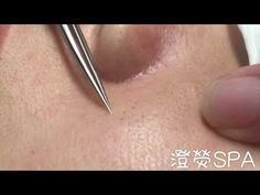 21 Best Zits images in 2018 | Acne treatment, Blackhead