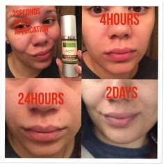 I hate when I break out on my face! But now in the manner of 48 hours my skin is all clear What Is Act, Acne Blemishes, Then And Now, Manners, Acting, Hate, Instagram