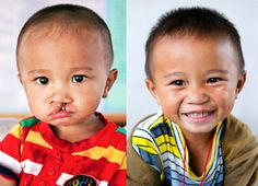 """""""We shall never know all the good that a simple smile can do."""" ~ Mother Teresa     Bao before and after cleft lip surgery at Operation Smile's medical mission in China.  http://www.operationsmile.org"""