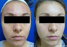Photodynamic therapy, PDT for acne treatment. Amazing results #LaserClinique  Contact us here: http://www.laser-clinique.com/