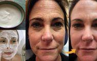 Vamos ensinar você a fazer um creme de bicarbonato para sua pele que vai transformar a pele do seu rosto em apenas 7 dias.