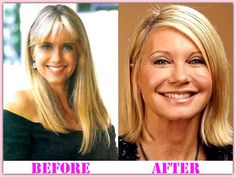 Olivia Newton John Plastic Surgery | Healthy Women Blog!