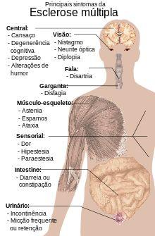 Esclerose múltipla ainda é pouco conhecida | Portal PcD On-Line