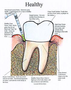 Important Oral Hygiene Instructions Dental Assistant Study, Dental Hygiene Student, Dental Humor, Dental Hygienist, Oral Hygiene, Dental World, Dental Life, Dental Teeth, Happy Dental