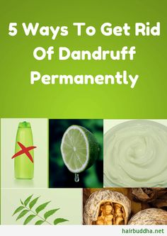 5 Ways To Get Rid Of Dandruff Permanently Loading. 5 Ways To Get Rid Of Dandruff Permanently What Is Dandruff, How To Remove Dandruff, How To Treat Dandruff, Hair Dandruff, Getting Rid Of Dandruff, Dandruff Solutions, Home Remedies For Dandruff, Natural Remedies, Hair Masks