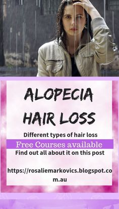 This post directs you to information sources about permanent and temporary hair loss. #hairloss #alopecia #temporaryhairloss #permanenthairloss #medicallyinducedhairloss #hairlossoptions Healthy Hair Tips, Healthy Scalp, Diy Hair Care, Hair Care Tips, Male Pattern Baldness, Beauty Tips For Women, Hair Raising, Hair Health, Hair Loss