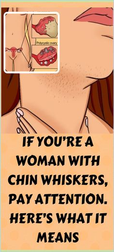 If You Are A Woman With Chin Whiskers, Pay Attention, Here�s What It Means Hair Growth Home Remedies, Home Remedies For Acne, Natural Home Remedies, Herbal Remedies, Natural Healing, Natural Facial, Natural Beauty, Cough Remedies, Holistic Remedies