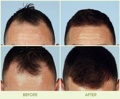Hair Transplant in Mumbai: We offer cost-effective hair transplant surgery like FUE & FUT. Visit to learn everything about hair transplant surgery. Visit us to know more about hairtransplantati… Hair Transplant Women, Hair Transplant Results, Hair Transplant Surgery, Best Hair Transplant, Losing Hair Women, Hair Loss Women, Bad Wigs, Hair Loss Medication, Natural Hair Loss Treatment