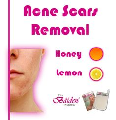 Here are 3 simple methods to help with Acne scar removal.