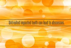 Dental Group, Dental Care, San Jose Dentist, Impacted Tooth, Cosmetic Treatments, Wisdom Teeth, Root Canal, Cosmetic Dentistry, Dental Implants