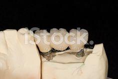 Impianto dentale a tre elementi - fotografia stock royalty-free