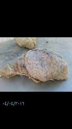 Brain : monkey