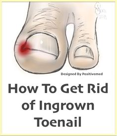 Natural Home Remedy for Ingrown Toenails - PositiveMed