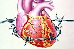 Cardiac Anesthesiologist: Angina pectoris: Classification of Angina Severity...