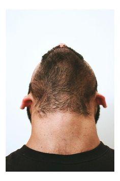 #Beard hair as seen from the underside of jaw