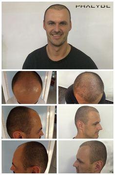 Hår transplantation resultat zoner 1,2,3- PHAEYDE Klinik Leslie K. Havde hårtab i sine zoner 1,2,3 over hans pande. Billedet viser resultatet af 7500 hår implantater, som blev foretaget i PHAEYDE Klinik på bare to dage.  http://dk.phaeyde.com/har-implantation