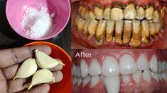 गंदे पीले दांतों को 5 मिनट में दूध जैसा सफेद और चमकदार बना देगा ये तरीका | teeth whitening remedy - YouTube Teeth Whitening Remedies, Natural Teeth Whitening, Teeth Health, Perfect Smile, Teeth Care, White Teeth, Teeth Cleaning, Health Remedies, The Cure