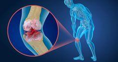 Knee Pain, Health, Outdoor Decor, Regional, News, Cooking, Back Pain, Bones, Human Body