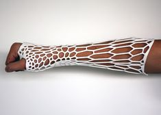 DIY 3D Printing: Cortex 3D printed cast for bone fractures