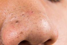 Med blot et par enkle ingredienser kan du lave gode masker og cremer til at stoppe disse grimme hudorme og få din hud til at se perfekt ud. Prøv dem!