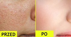 A lot of young and old women face the problem of open pores. Open pores are the large pores that usually appear on oily and combination skin. These pores Oily Skin Care, Skin Care Tips, Dry Skin, Open Pores On Face, Orange Peel Skin, Get Rid Of Pores, Smaller Pores, Home Remedies For Skin, Shrink Pores