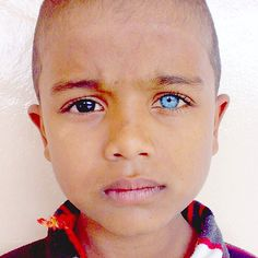 Heterochromia Iridum is when the person has eyes of different ...