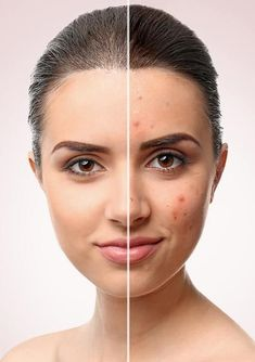 Detoxify Your Body Immediately If You Notice Any of These 9 Warning Signs Big Pores, Dry Brushing Skin, Detoxify Your Body, Rides Front, Detox Tips, Les Rides, Sephora, Natural Face, Skin Problems