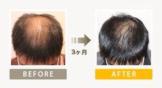 施術師の方と施術を受けていく中で、その都度アドバイス、修正点を話しながら少しずつ改善していった。施術開始から約3ヶ月が経過した際、髪質、量とも驚くほど変化があり実感した。