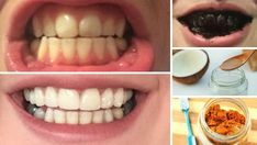Natural Teeth Whitening Remedies properly caring for your teeth, you're in luck. Today, we will discuss ten all-natural home remedies Teeth Whitening Remedies, Charcoal Teeth Whitening, Natural Teeth Whitening, Whitening Kit, Charcoal Toothpaste, Teeth Health, Dental Health, Oral Health, Teeth Bleaching