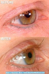 For some patients, the overuse of eyelash extensions can cause permanent eyelash loss. Learn what Bauman Medical can do for you with Eyelash Implants. Eyelash Extension Removal, Eyelash Extensions, Eyelash Implants, Hair Transplant Results, Eyelash Conditioner, Permanent Eyelashes, Eyelid Surgery, Celebrity Plastic Surgery, Hair Pulling