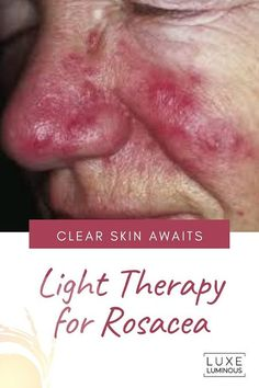 Light Therapy for Rosacea: Skin Treatment LuxeLuminous Blue Light Therapy, Light Therapy Mask, Led Facial, Facial Skin Care, Skin Treatments, Spray Tan Tips, Clear Skin Fast, How To Tan Faster, Top