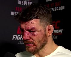 Michael Bisping Beats Anderson Silva in Controversial Fight Michael Bisping, Cuts And Bruises, Beats, Profile Pics, Count, Ann, Entertainment, Templates, Profile Pictures