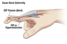 What is Swan Neck Deformity?  Comment if you know!   (It's a condition characterized by the unusual contraction of a fingertip, caused by a hyperextended proximal (nearest the knuckle) interphalangeal joint (PIP joint) and a flexed distal (furthest from the knuckle) interphalangeal joint (DIP joint).)