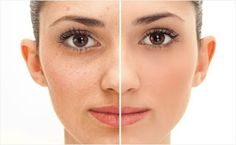 Get wrinkle free skin by avoiding these 5 factors ~ Meenakam Lifestyle