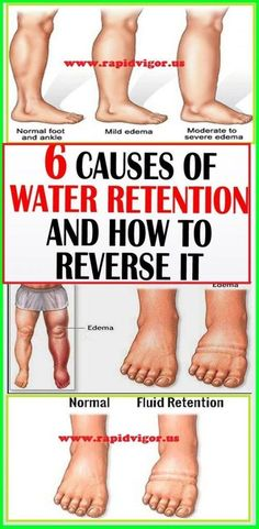 Reduce Water Retention 6 Simple Ways to Reduce Water Retention - Water retention occurs when excess fluids build up inside your body. It is also known as fluid retention or edema. Water retention occurs in the circulatory system or within tissues. Good Health Tips, Health And Fitness Tips, Health Advice, Health And Wellness, Wellness Tips, Health Care, Health Diet, Health Exercise, Health Articles