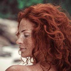 Este arraso. | 19 fotos fantásticas que provam que as sardas são mágicas