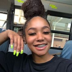 5 Best Summer 2019 Makeup Trends You Need To know. Cute Girls With Braces, Cute Braces Colors, Braces Girls, Brace Face, Light Skin Girls, Teeth Braces, Pretty Black Girls, Makeup Trends, Teeth Whitening