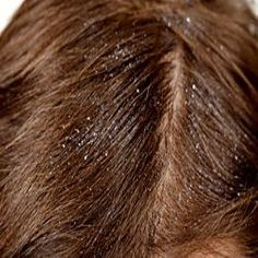 5 Natural Cures For Dandruff #hairlosshomeremedies