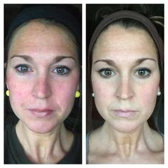 ANOTHER HAPPY SOOTHE CUSTOMER -- this is her Transformation Tuesday pic....I LOVE it! Changing skin, changing lives...real people, real results!
