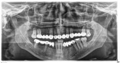 I am looking for a good dentist in Fort Worth. I will appreciate if he is pocket friendly as well.
