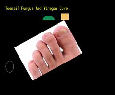 Toenail fungus and vinegar cure - Nail Fungus Remedy. You have nothing to lose! Visit Site Now